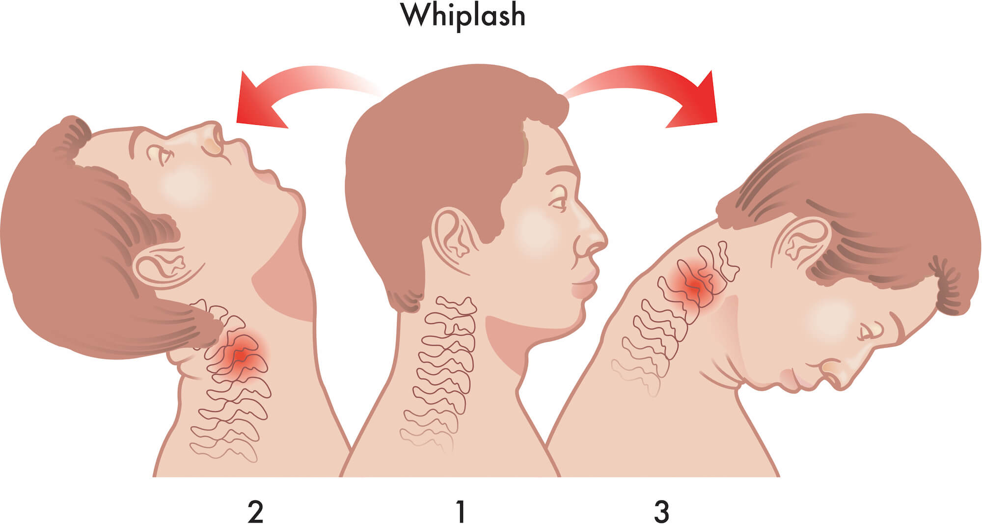 Illustration of the motions of a neck whiplash injury