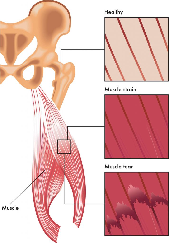 Illustration of human muscle comparing the difference between healthy, strained and torn muscle tissue